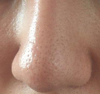 アンサージュの口コミと効果は本当?毛穴が気になる時の簡単ケアで驚く程の美肌へ
